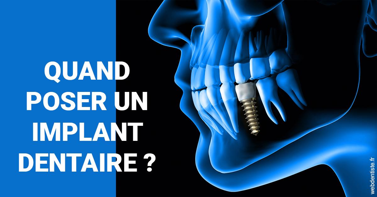 https://docteur-bleret-yann.chirurgiens-dentistes.fr/Les implants 1
